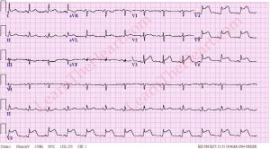 We nurses know what this means too (bad heart attack!!).